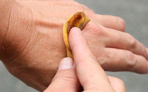 Cascara para irritación en la piel